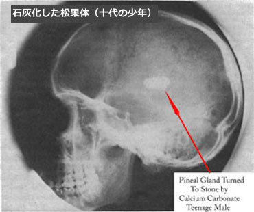 pineal-gland-calcification.jpg